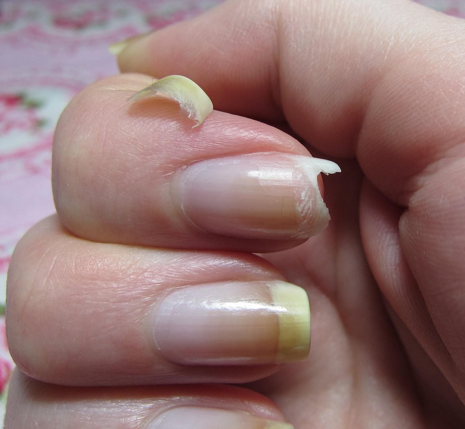 Horrible Nail Break Mar 2013.jpg